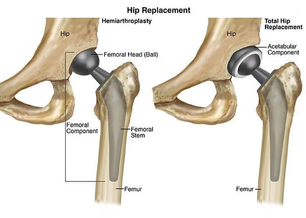 Which is the best doctor for hip replacement in India (fractured