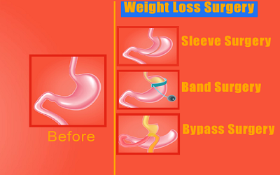 Why is bariatric surgery best option