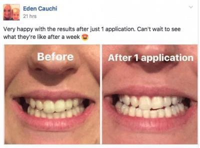 How Much Should A Teeth Whitening Procedure Cost Quora