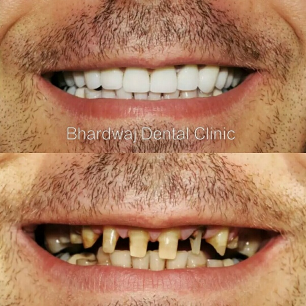 What is the cost of a 3M zirconia crown? - Quora