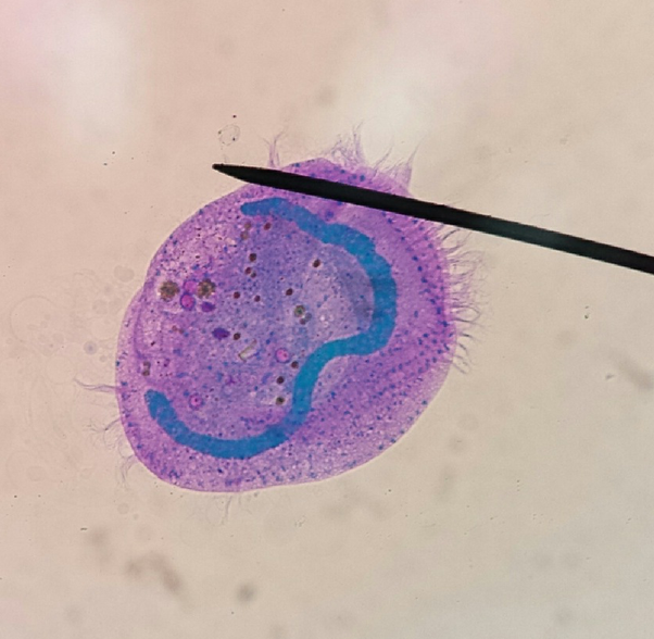 What are some examples of protists with cilia? - Quora