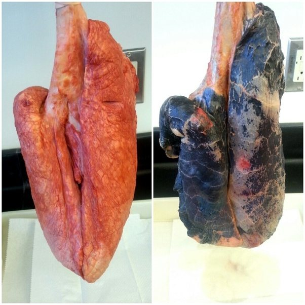 how to clear up phlegm in lungs