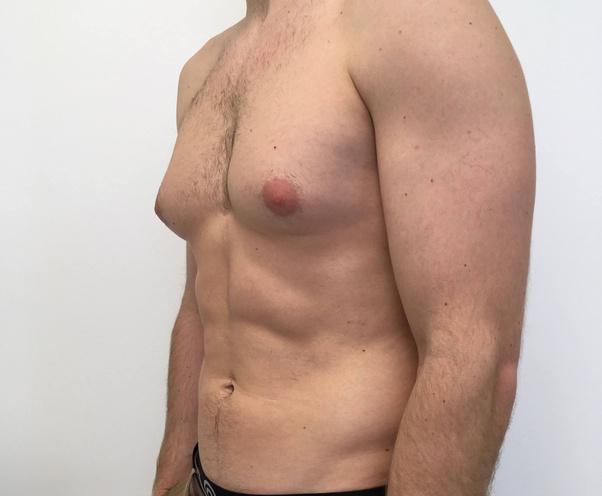 Skinny fat man boobs
