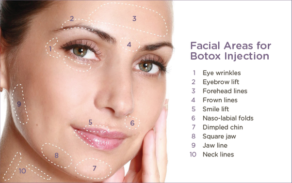 Botox Injection Face Chart – Wonderful Image Gallery