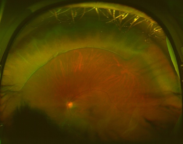 What Is Retinal Detachment What Are Its Symptoms And