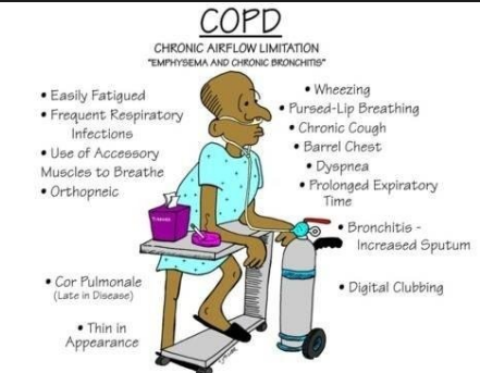 what are the most common symptoms of copd according to the