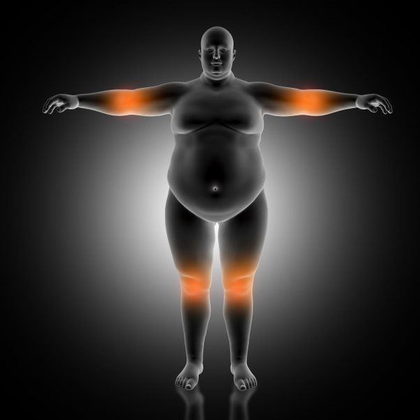 What is the best procedure to remove excess skin and fat