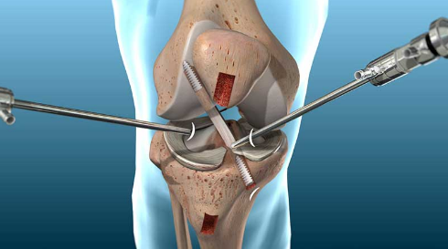 Who Is The Best Total Knee Replacement Surgeon In Jaipur