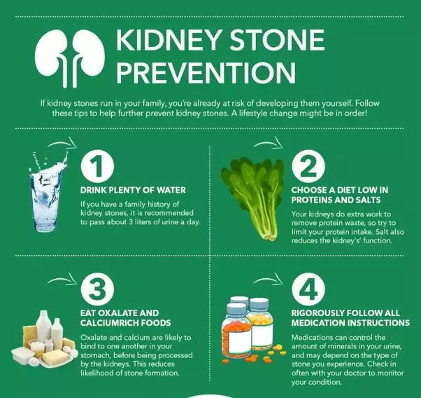 How to treat kidney stones quora large stones ccuart Image collections