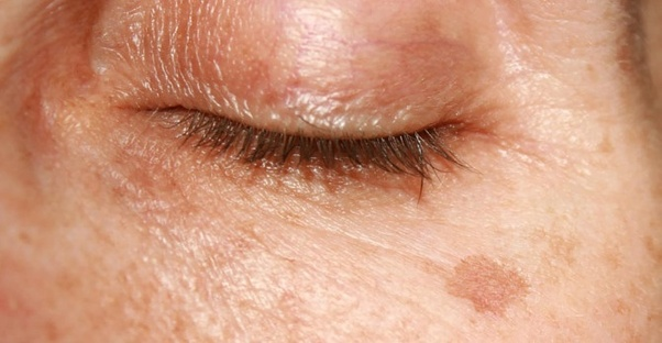 What Is The Difference Between An Age Spot And A Mole Are Age Spots Ever Cancerous Quora