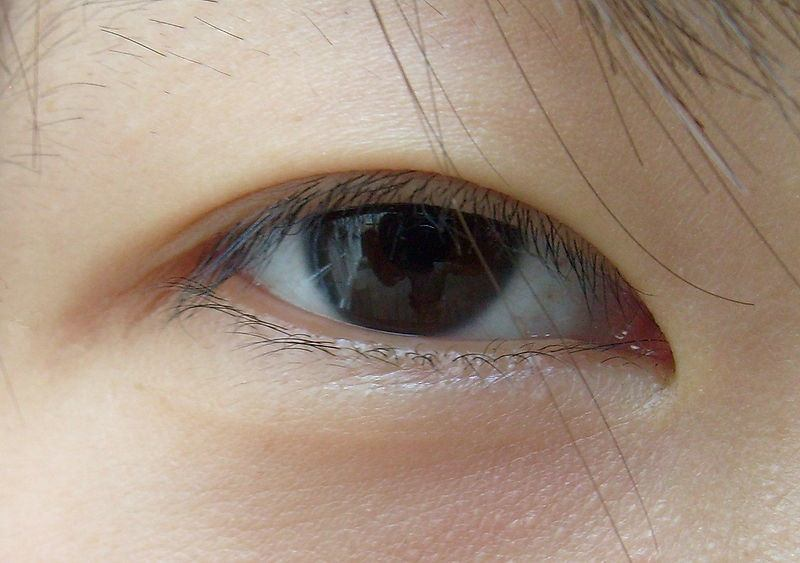 Inchada e dos área pálpebra a olhos sob