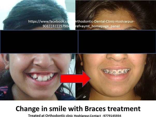 What braces do to your face
