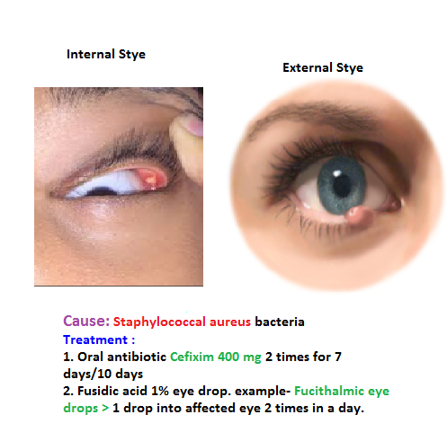 how+to+treat+a+stye+under+the+eyelid