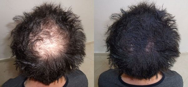 Is There Any Chance Of Hair Regrowth In Bald Area Quora