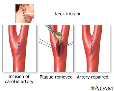 removing plaque from arteries