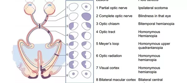 Does Optic Nerve Lesion Cause Defect On The Ipsilateral Or