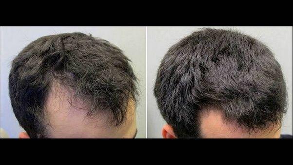 Natural Ways To Increase Volume Of Hair