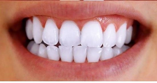 How Much Does Laser Teeth Whitening Cost In Philippines Teethwalls