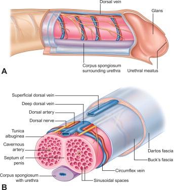 lymphangitis pénisz