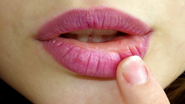 How to naturally get pink lips - Quora