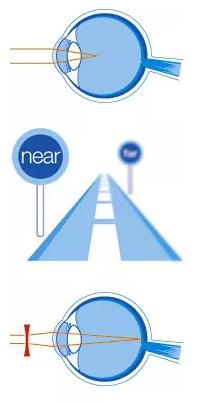 Online módon hogyan lehet helyreállítani a látást rövidlátással