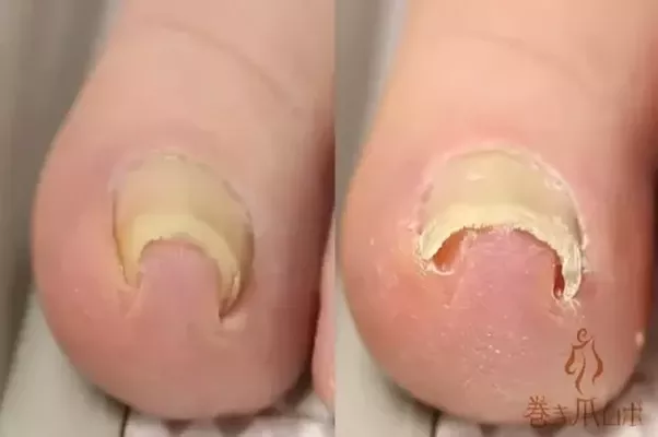 What happens if an ingrown toenail goes untreated quora if you dont do anything about it the infection will get worst and spread to surrounding skin and the nail will keep growing inwards solutioingenieria Choice Image