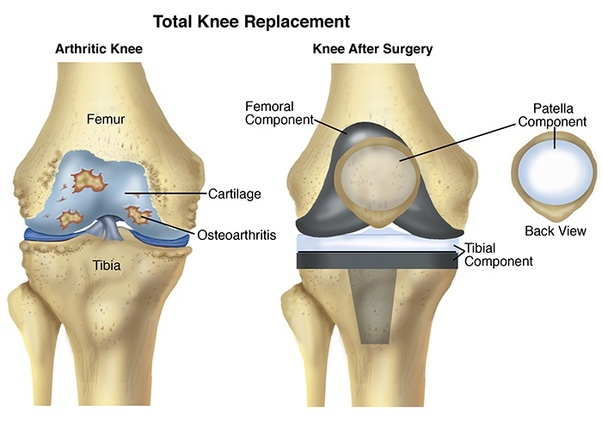 Is knee replacement surgery successful in india quora thighbone and knee top alongside supplanting the same with fake joint with the ones made up metal and brilliant polymers and plastics ccuart Choice Image