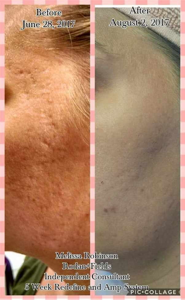 Is The Dermaroller Treatment Helpful For Acne Pitted Scars And Is It Safe To Use At Home If Yes Which Needle Should I Buy 0 25mm Or 0 5mm Or More Than That For Home