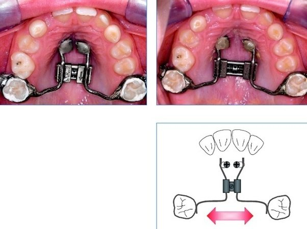 palate expander adults