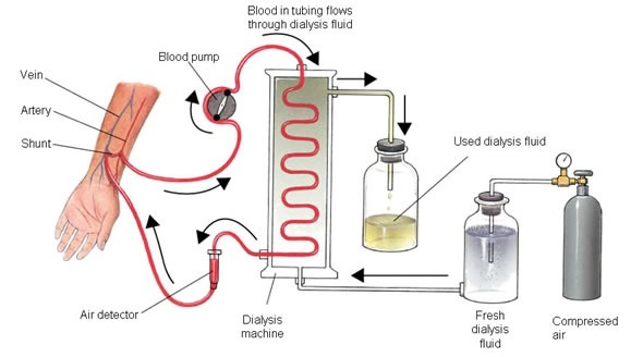 What Is Kidney Dialysis Quora