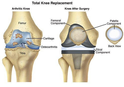 What is the cost of knee replacement? - Quora
