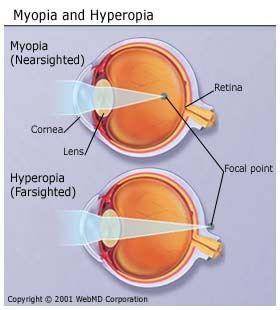 What S The Opposite Of Myopia Quora