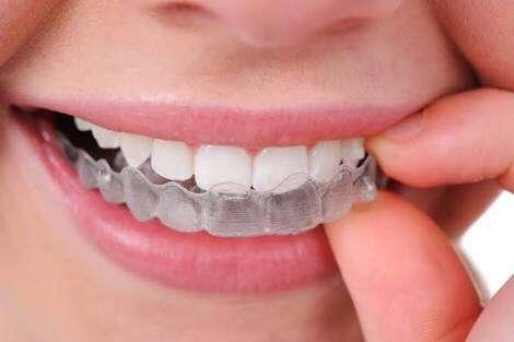 straightens Invisalign teen teeth effectively