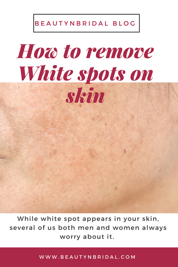 What Is Treatment For White Spot On Skin By Ayurveda Quora