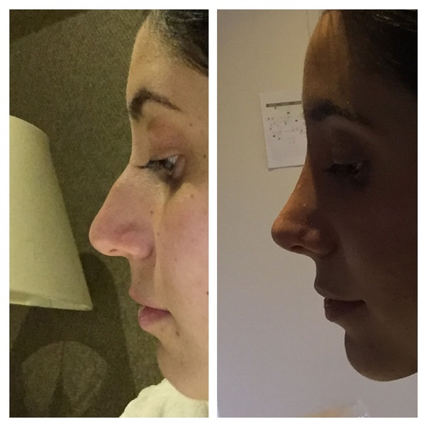 What is it like to get a rhinoplasty? How does one's life change