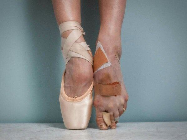 Why Do Ballet Dancers Always Have A Pained Look On Their -3256