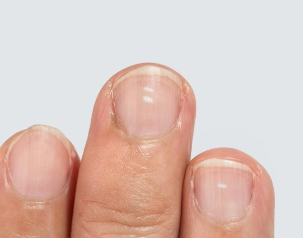 Do the white spots on some of my nails indicate a deficiency? - Quora