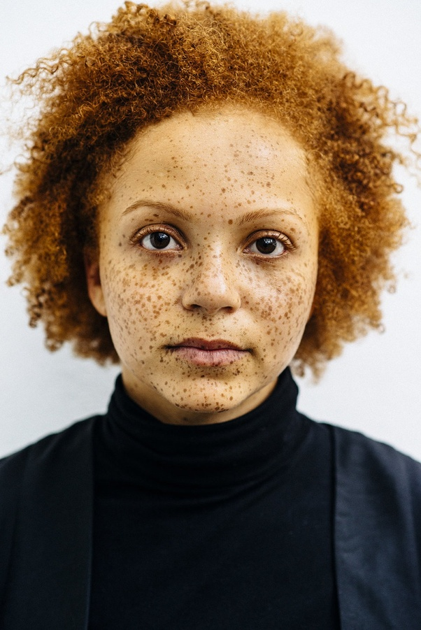 Can black people have freckles? - Quora
