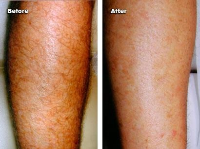laser treatment for legs