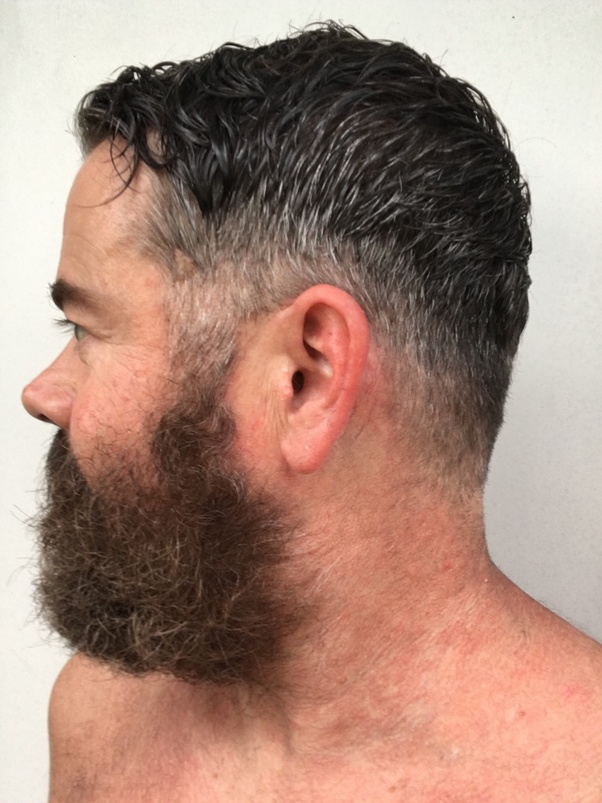 Will Acne Scarred Skin Prevent Beard Growth In Other Words If I Have Scars From Cystic Acne Will Facial Hair Grow In The Future Is My Beard Going To Be Patchy Because