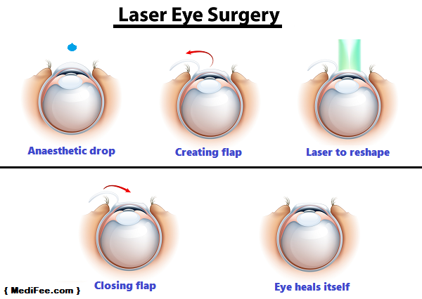 Can you have laser eye surgery done more than once? - Quora