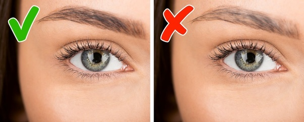 What could be the possible causes of eyebrow loss? - Quora