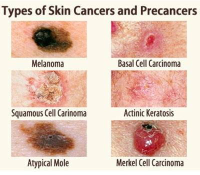 symtoms Anal skin cancer