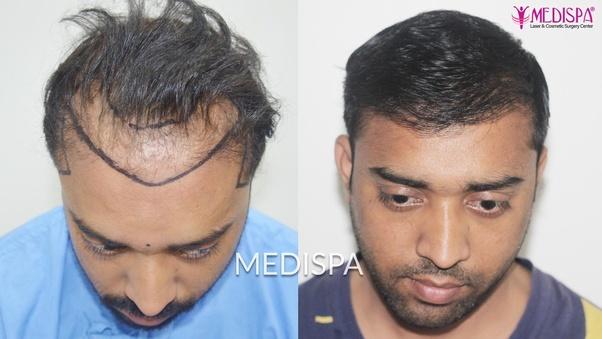 Is biofibre hair transplant effective? - Quora