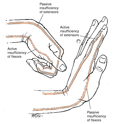Hand grip muscle contraction and rationale hand grip