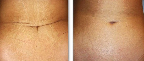 How To Get Rid Of Stretch Marks Permanently Quora
