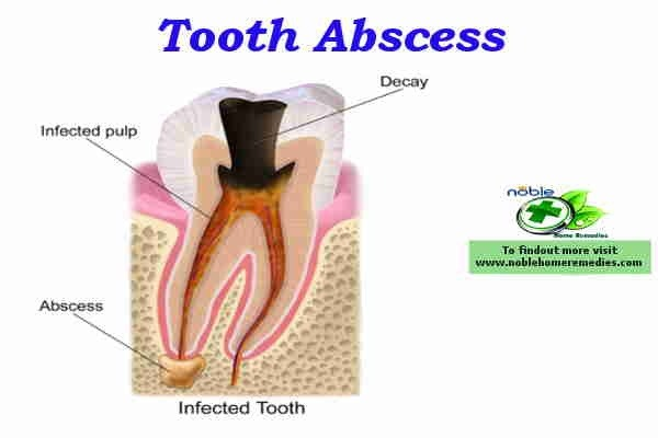 Best Natural Antibiotic For Abcessed Tooth