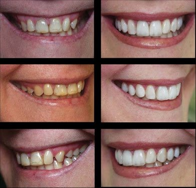 Do veneers make teeth look bigger quora and example of it is given below solutioingenieria Image collections