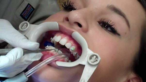How long does it take to get braces put on? - Quora