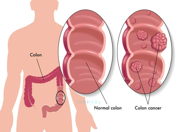 What Are The Good Hospitals In India For Colon Cancer Treatment Quora